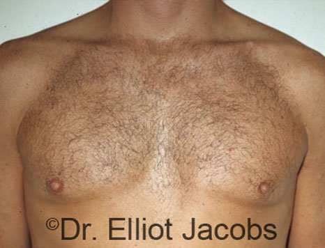 Gynecomastia. Body Builders - After  Photo - male (frontal view)