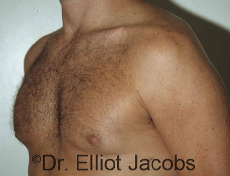 Gynecomastia. Body Builders - After  Photo - male (oblique view)