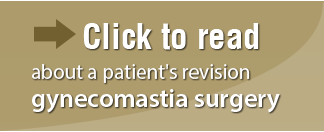 Click to read, about a patient's revision gynecomastia surgery
