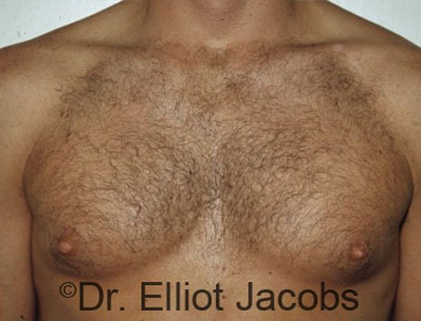 Gynecomastia. Body Builders - Before  Photo - male (frontal view)