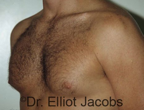 Gynecomastia. Body Builders - Before  Photo - male (oblique view)