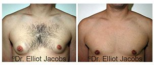 Before and After Photos: male - frontal view