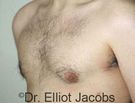 Gynecomastia Adults - After Treatment Photo - male (oblique view)