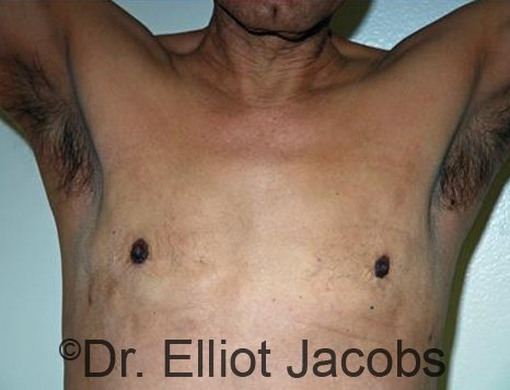 Revision Gynecomastia - Photos After Treatment: male patient 1 ( frontal view)