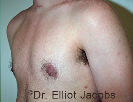 Nipple Reduction: AfterTreatment Photo - male patient 1 (left side oblique view)