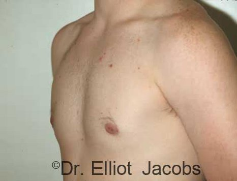 Gynecomastia Adolescents - After Treatment Photo - male (oblique view)