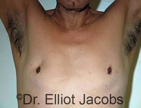 Revision Gynecomastia - Photos Before Treatment: male patient 1 ( frontal view)