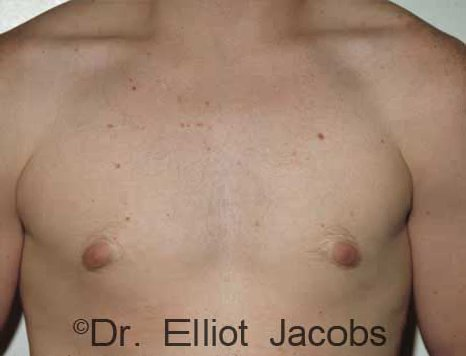 Gynecomastia Adolescents - Before Treatment Photo - male (frontal view)