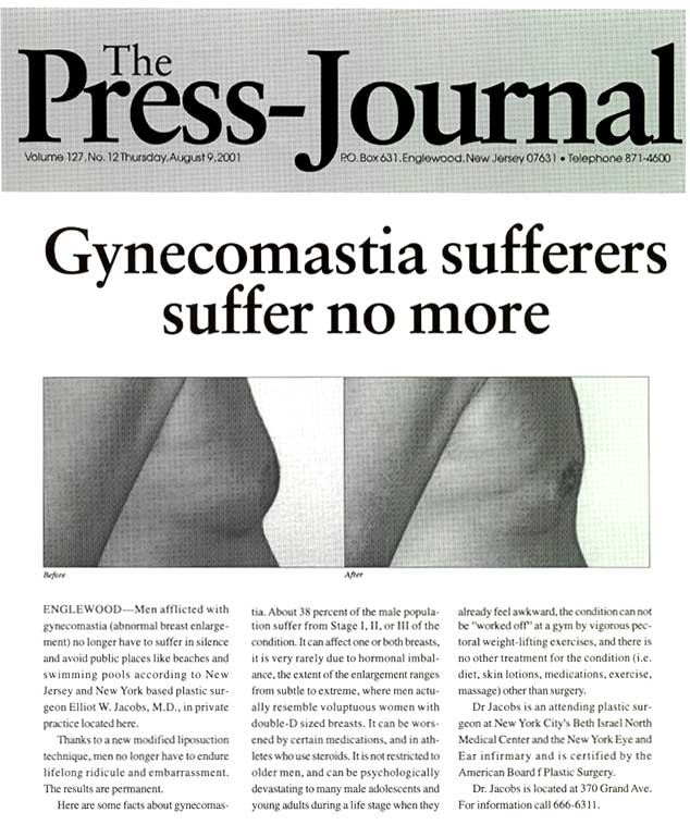 The Press Journal - Gynecomastia sufferers suffer no more