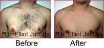 Gynecomastia. Before and After Photos - patient 3 (frontal view)