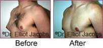 Gynecomastia. Before and After Photos - patient 4 (oblique view)