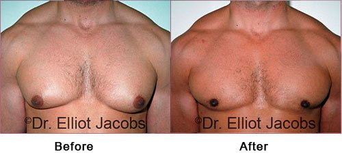 NEW YORK GYNECOMASTIA. BODY BUILDERS - Before and After Photos: Male (frontal view)