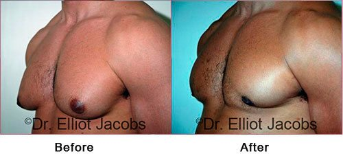 NEW YORK GYNECOMASTIA. BODY BUILDERS - Before and After Photos: Male (left side, oblique view)