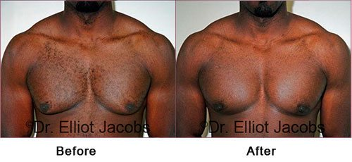 NEW YORK GYNECOMASTIA. BODY BUILDERS - Before and After Photos: Man (frontal view)