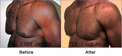 NEW YORK GYNECOMASTIA. BODY BUILDERS - Before and After Photos: Man (left side, oblique view)