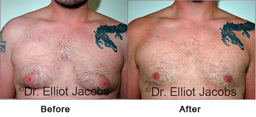 Gynecomastia NYC. Before and After Treatment Photos: Male - (frontal view)
