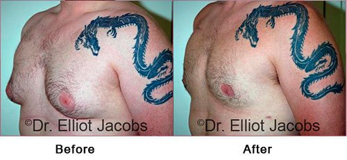 Gynecomastia NYC. Before and After Treatment Photos: Male - (left side, oblique view)