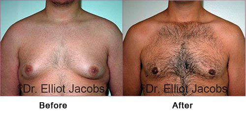 Gynecomastia NYC. Before and After Treatment Photos: Man - (frontal view)