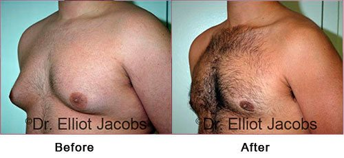Gynecomastia NYC. Before and After Treatment Photos: Man - (left side, oblique view)