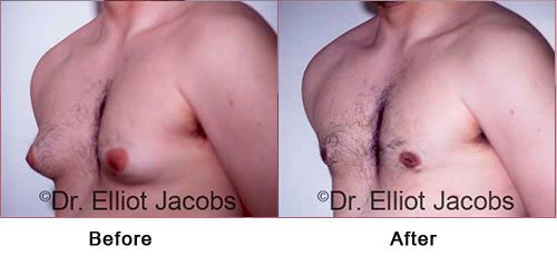 NEW YORK GYNECOMASTIA - Before and After Treatment Photos: Male (left side, oblique view)