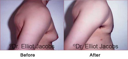 NEW YORK GYNECOMASTIA - Before and After Treatment Photos: Male (right side view)