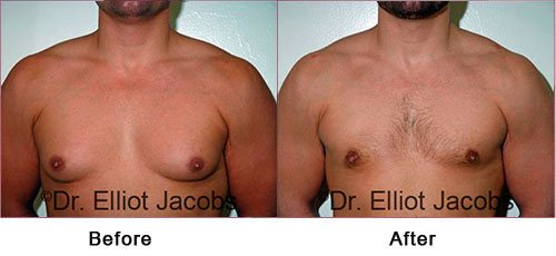 NEW YORK GYNECOMASTIA - Before and After Treatment Photos: Man (frontal view)