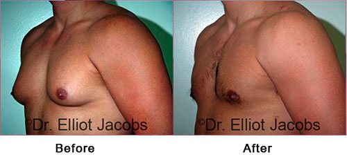 NEW YORK GYNECOMASTIA - Before and After Treatment Photos: Man (left side, oblique view)