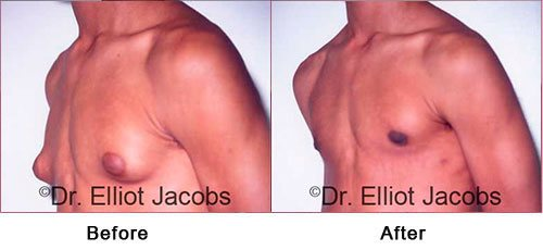 ADOLESCENT GYNECOMASTIA. Before and After Photo - man (left side, oblique view)