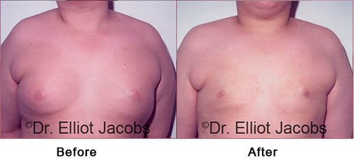 ADOLESCENT GYNECOMASTIA. Before and After Photo - 18 years old man (frontal view)