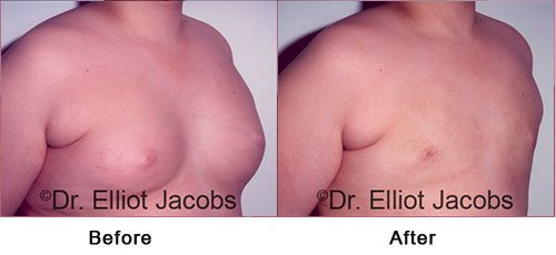 ADOLESCENT GYNECOMASTIA. Before and After Photo - 18 years old man (right side, oblique view)