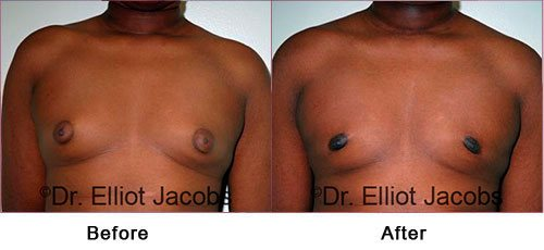 ADOLESCENT GYNECOMASTIA. Before and After Photo - male (frontal view)