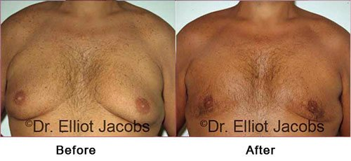Gynecomastia Surgery FOR OVERWEIGHT and OBESE Men - Before and After Photos - man (frontal view)