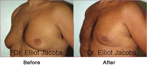 Gynecomastia Surgery FOR OVERWEIGHT and OBESE Men - Before and After Photos - man (left side, oblique view)