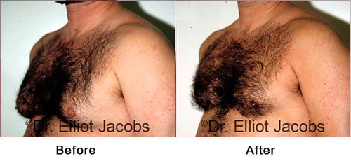 Gynecomastia Surgery FOR OVERWEIGHT and OBESE Men - Before and After Photos - male (left side, oblique view)