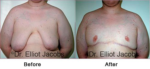 Gynecomastia Surgery. For OVERWEIGHT and OBESE Men - Before and After Photos - male (frontal view)
