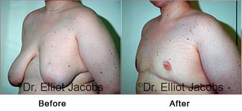Gynecomastia Surgery. For OVERWEIGHT and OBESE Men - Before and After Photos - male (left side, oblique view)
