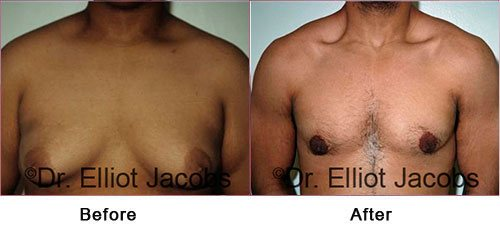Gynecomastia Surgery - For OVERWEIGHT and OBESE Men - Before and After Photos - male (frontal view)