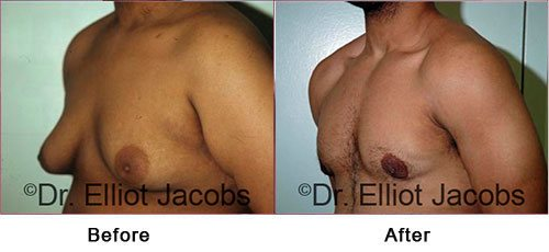 Gynecomastia Surgery - For OVERWEIGHT and OBESE Men - Before and After Photos - male (left side, oblique view)