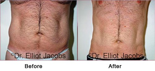 Gynecomastia Surgery - For OVERWEIGHT and OBESE Men - Before and After Treatment Photos - male (frontal view)