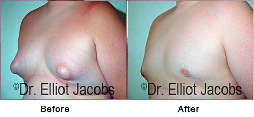 Gynecomastia. Puffy Nipples - Before and After Photos - man (left side, oblique view)