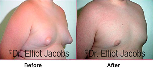 Gynecomastia. Puffy Nipples - Before and After Photos - man (right side, oblique view)