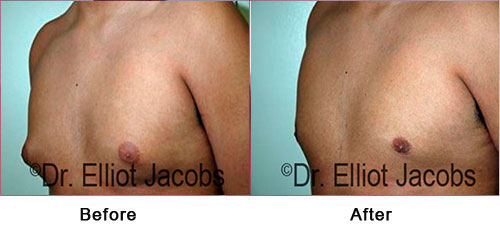 Gynecomastia. Puffy Nipples - Before and After Photos - male (left side, oblique view)