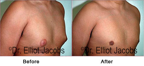 Gynecomastia. Puffy Nipples - Before and After Photos - male (right side, oblique view)