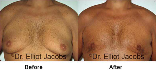 TORSOPLASTY - Before and After Photos - man, breast (frontal view)