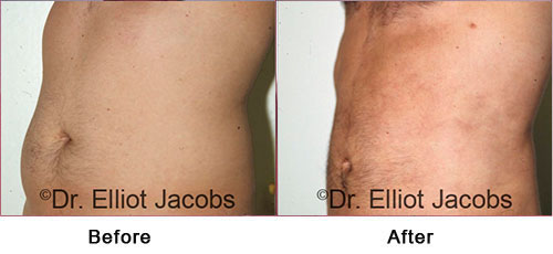 TORSOPLASTY - Before and After Photos - man, tummy (left side, oblique view)