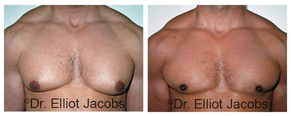 APPROACH TO GYNECOMASTIA - Before and After Treatment photos - male patient, front view (breasts)