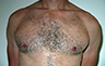 Gynecomastia Adults - Before and After Photo - patient 101