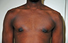 Puffy Nipples - Before and After Treatment Photos: Men breasts (nipples), front view, patient 34
