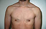 Female to Male, Top Surgery: Before and After Treatment Photos: male patient 8 (brests, frontal view)