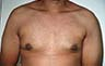 Gynecomastia Adults - Before and After Treatment Photos - male breasts, frontal view, patient 104